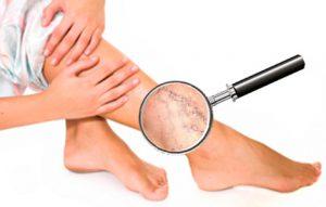 варикоз-лечение-народными-способами-2
