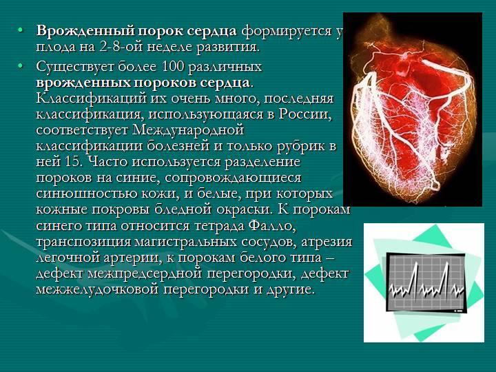 врожденный-порок-сердца-00