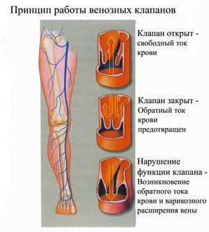 Лечение-варикоза-вен-на-ногах-мед-препаратами