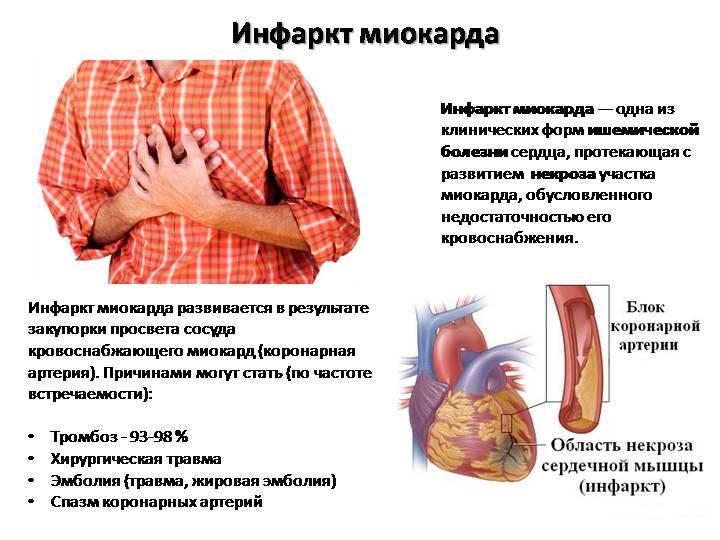 формы-инфаркта-миокарда-01