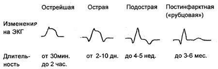 формы-инфаркта-миокарда-06