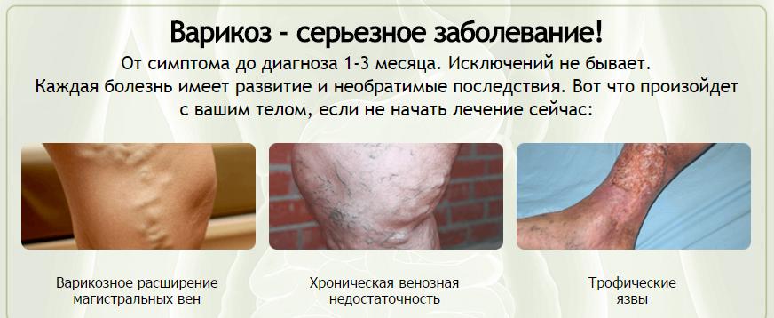 вариус-гель-от-варикоза-купить-в-аптеке-03