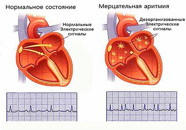 аритмия-лечение-народными-средствами-01