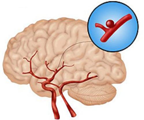 развитие аневризмы головного мозга