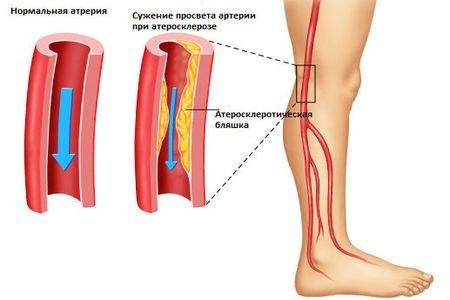 Облитерирующий артериосклероз: этиология