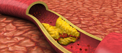 Облитерирующий артериосклероз: последняя стадия