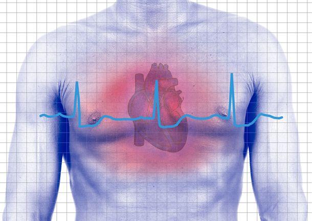 Не медикаментозная терапия сердечной недостаточности