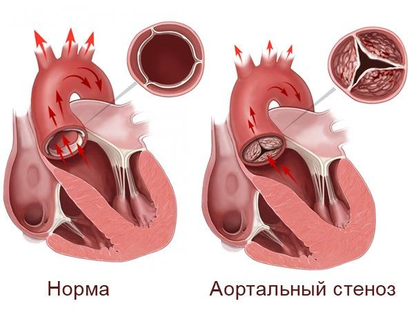 приоретенный порок сердца