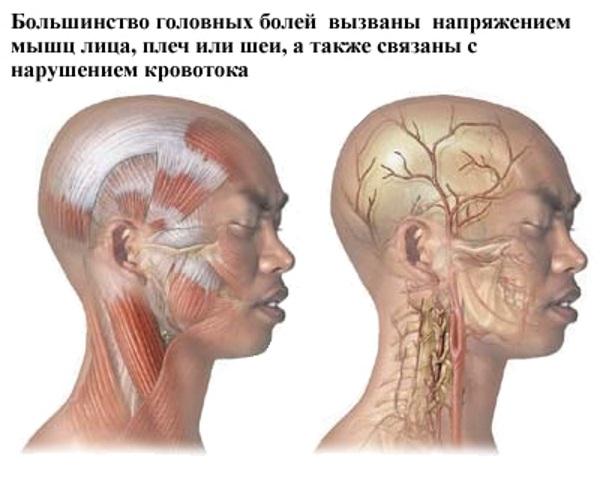 Этиология и причины развития мигрени