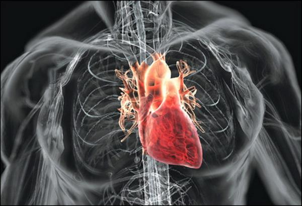 Аортальная недостаточность, вид сердца