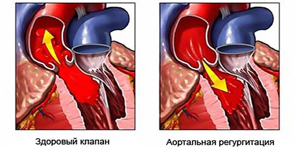 Аортальная недостаточность регургитация и здоровый клапан