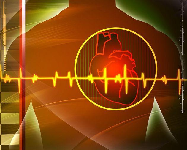 аортальный стеноз