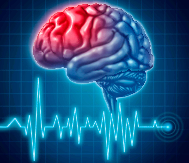 Как лечить инсульт?